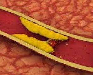 Can Heart Savior Help Reduce Dangerous Cholesterol Levels?