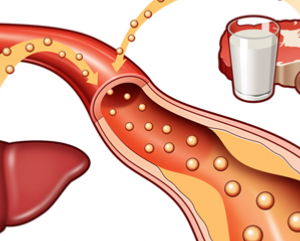 Different Causes of High Cholesterol – High Cholesterol Causes