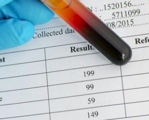 Good cholesterol not always good, study suggests…