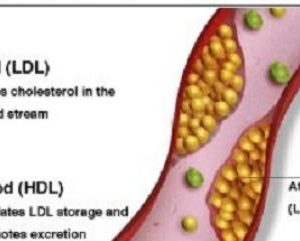 When should low HDL cholesterol levels not be a worry?