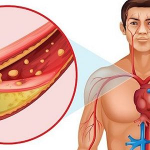 Factors that can cause high cholesterol