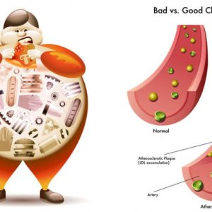 Diet to lower cholesterol levels