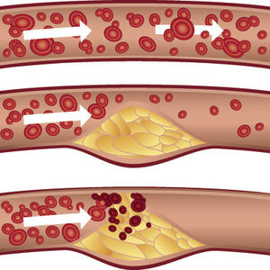 What you need to know about cholesterol-lowering statins