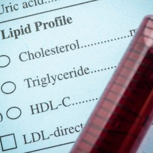 High blood pressure: Cholesterol-lowering diet plan could slash your BP reading