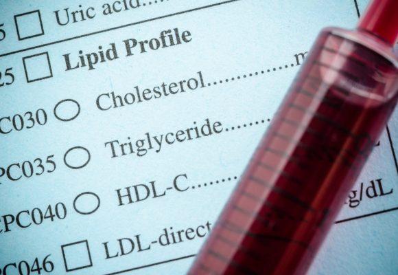 High blood pressure: Cholesterol-lowering diet plan could slash your BP reading