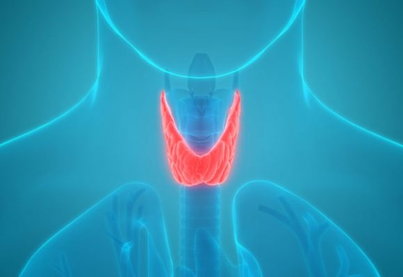 Thyroid Supplement – 9 Foods Thyroid Experts Avoid—and You Should Too