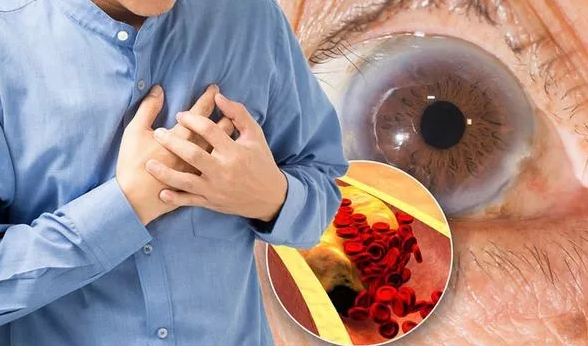 High cholesterol warning