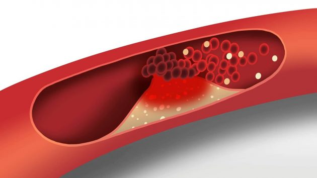 5 Tips for Managing High Cholesterol